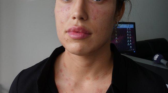 """""""Gençlik aşısı"""" adı altında cildine işlem yapılan genç kadından suç duyurusu"""